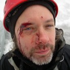 Self inflicted wound - cut my eyebrow with the adze while on Vemorkbrufoss ost