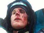 Falling ice is harder than flesh
